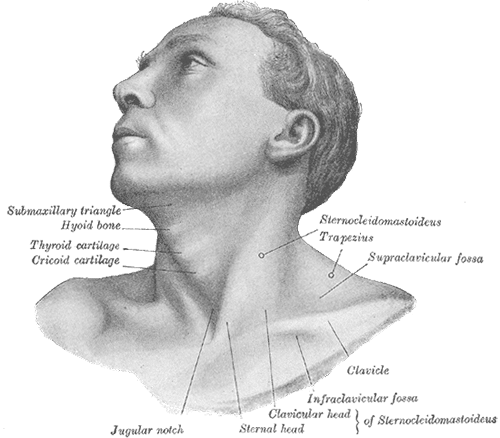 Illustration of a man with torticollis and the muscles affected by it.