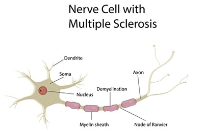 A nerve cell with MS