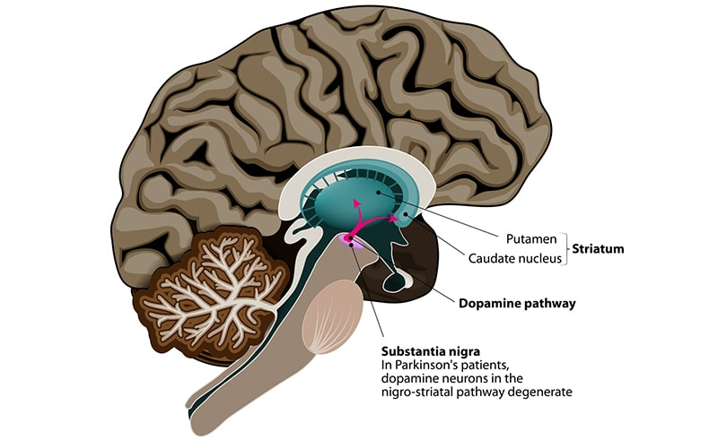 Illustration of Parkinson's Disease on the human brain
