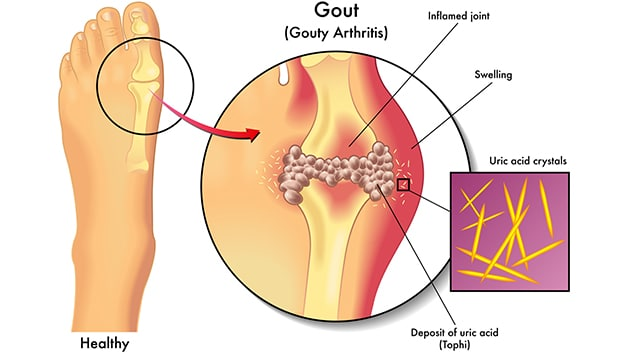 Illustration of a gout flare up