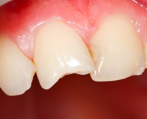 Photo showing a close up of a couple chipped teeth